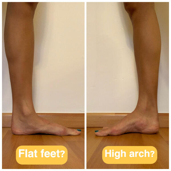 Flat feet vs high arch